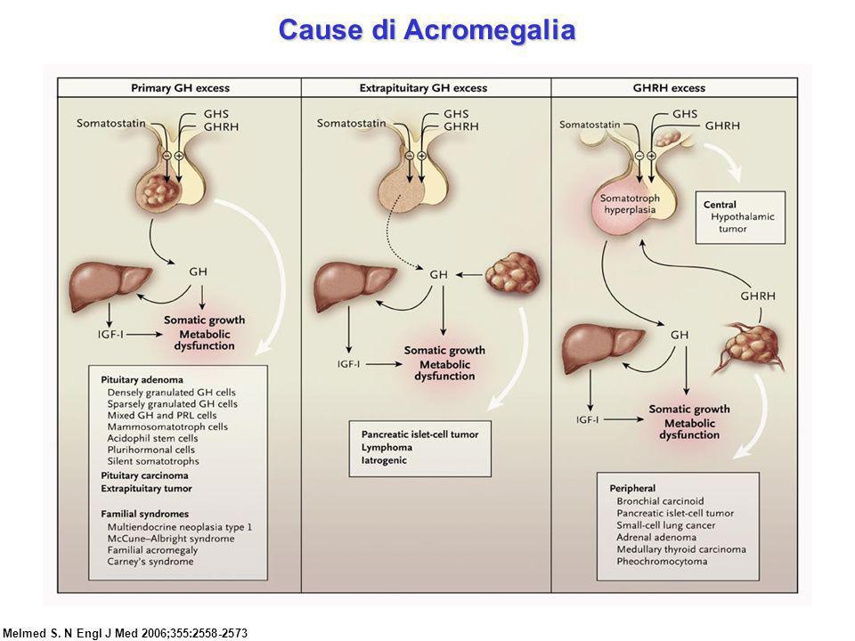 Cause di Acromegalia Melmed S. N Engl J Med 2006;355:2558-2573