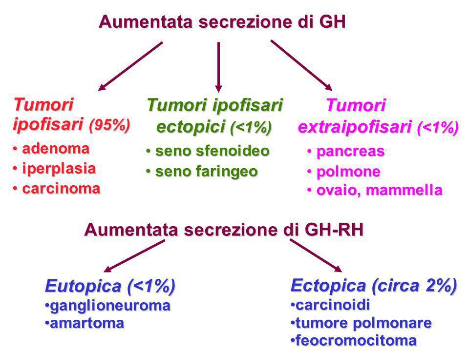 Aumentata secrezione di GH