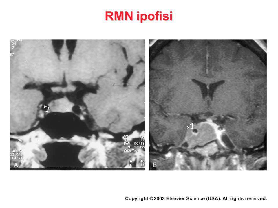 RMN ipofisi