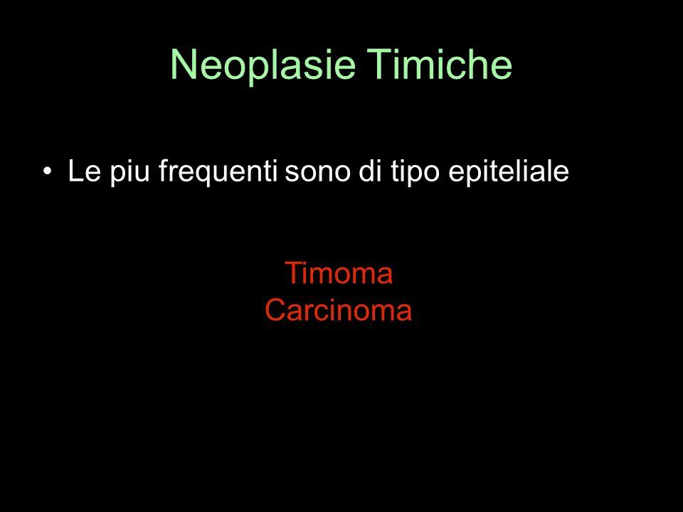 Neoplasie Timiche Le piu frequenti sono di tipo epiteliale Timoma
