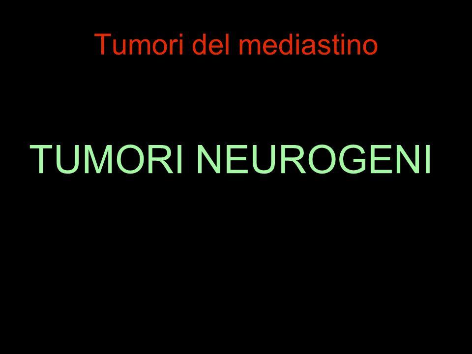 Tumori del mediastino TUMORI NEUROGENI