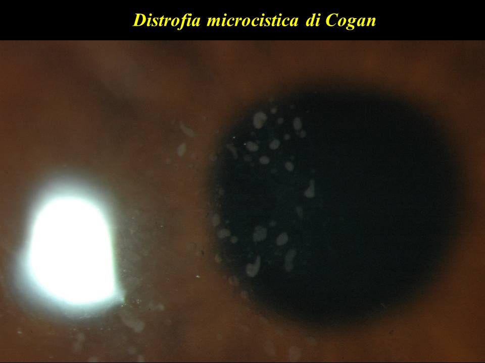Distrofia microcistica di Cogan