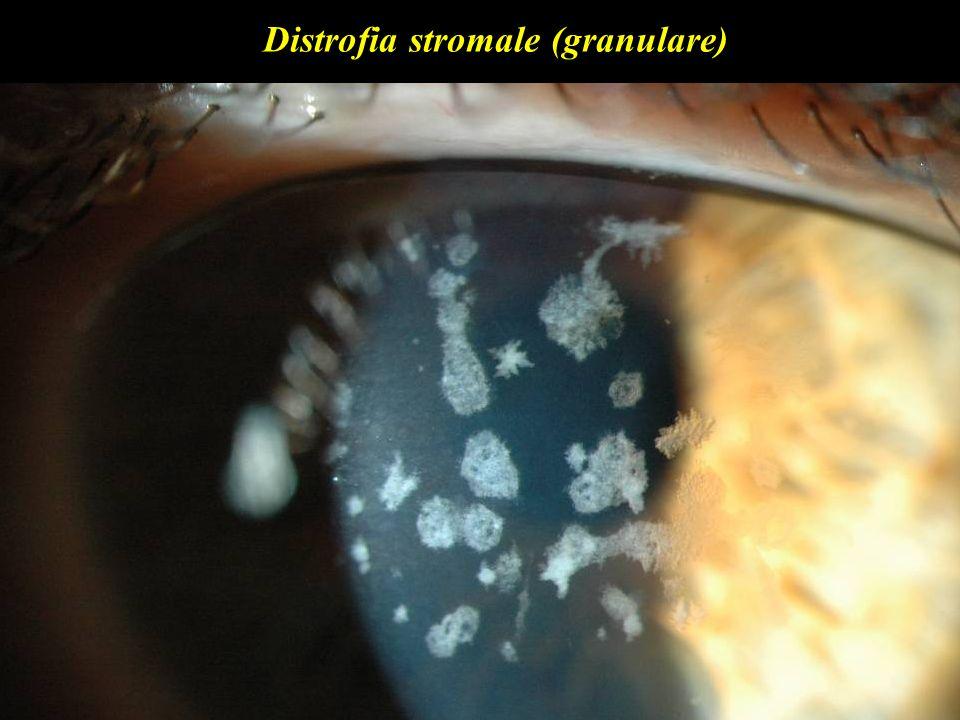 Distrofia stromale (granulare)