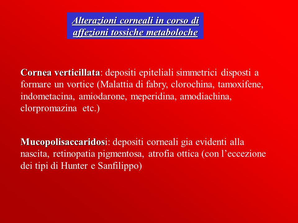 Alterazioni corneali in corso di affezioni tossiche metaboloche