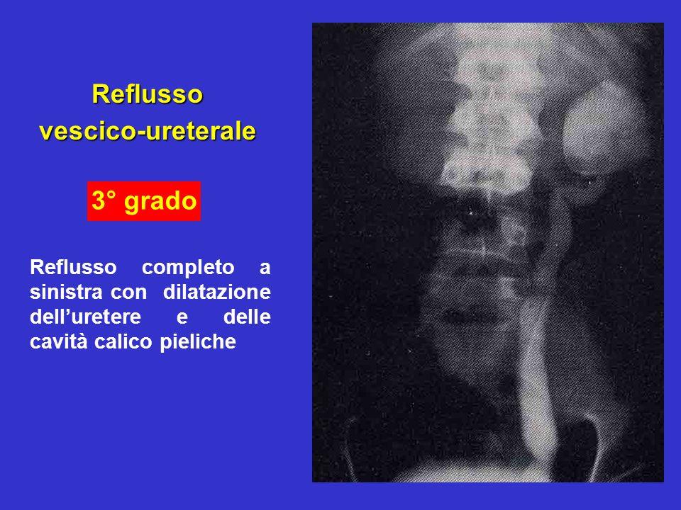Reflusso vescico-ureterale 3° grado