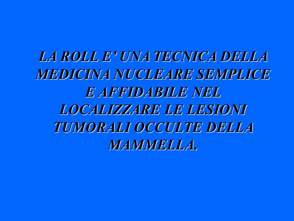 LA ROLL E' UNA TECNICA DELLA MEDICINA NUCLEARE SEMPLICE E AFFIDABILE NEL LOCALIZZARE LE LESIONI TUMORALI OCCULTE DELLA MAMMELLA.