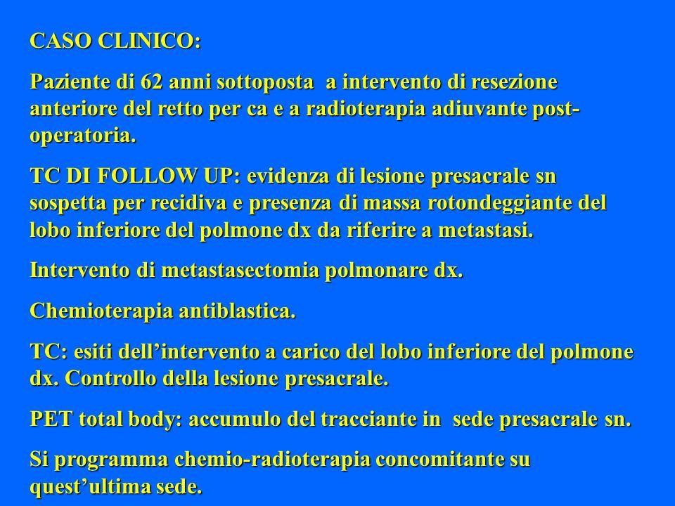 CASO CLINICO: Paziente di 62 anni sottoposta a intervento di resezione anteriore del retto per ca e a radioterapia adiuvante post-operatoria.