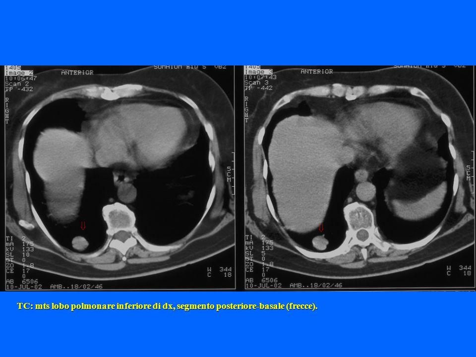   TC: mts lobo polmonare inferiore di dx, segmento posteriore-basale (frecce).