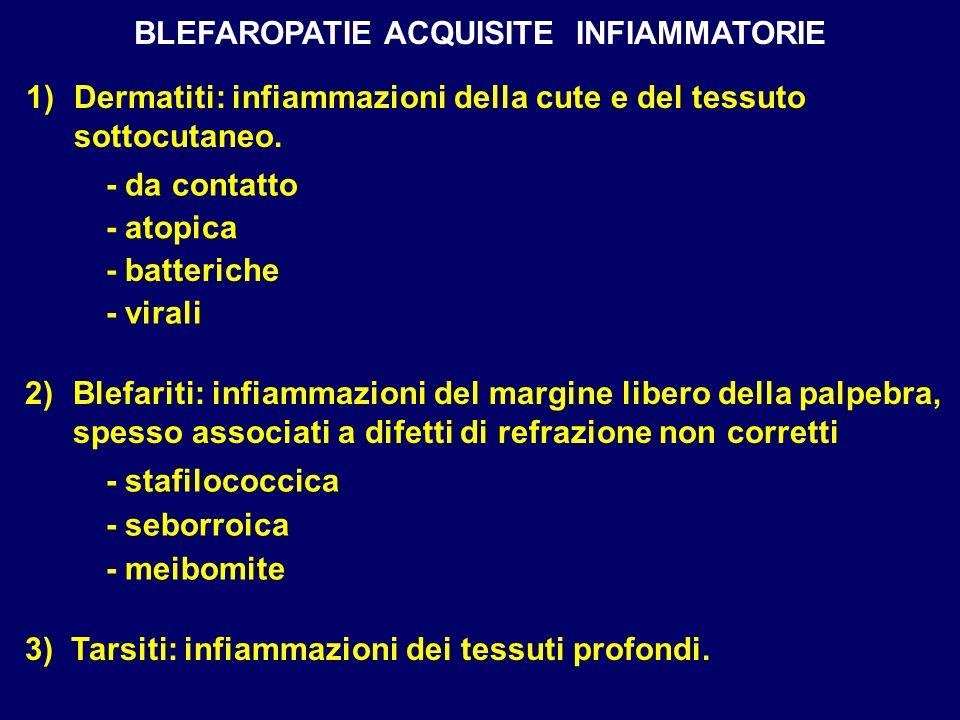 BLEFAROPATIE ACQUISITE INFIAMMATORIE