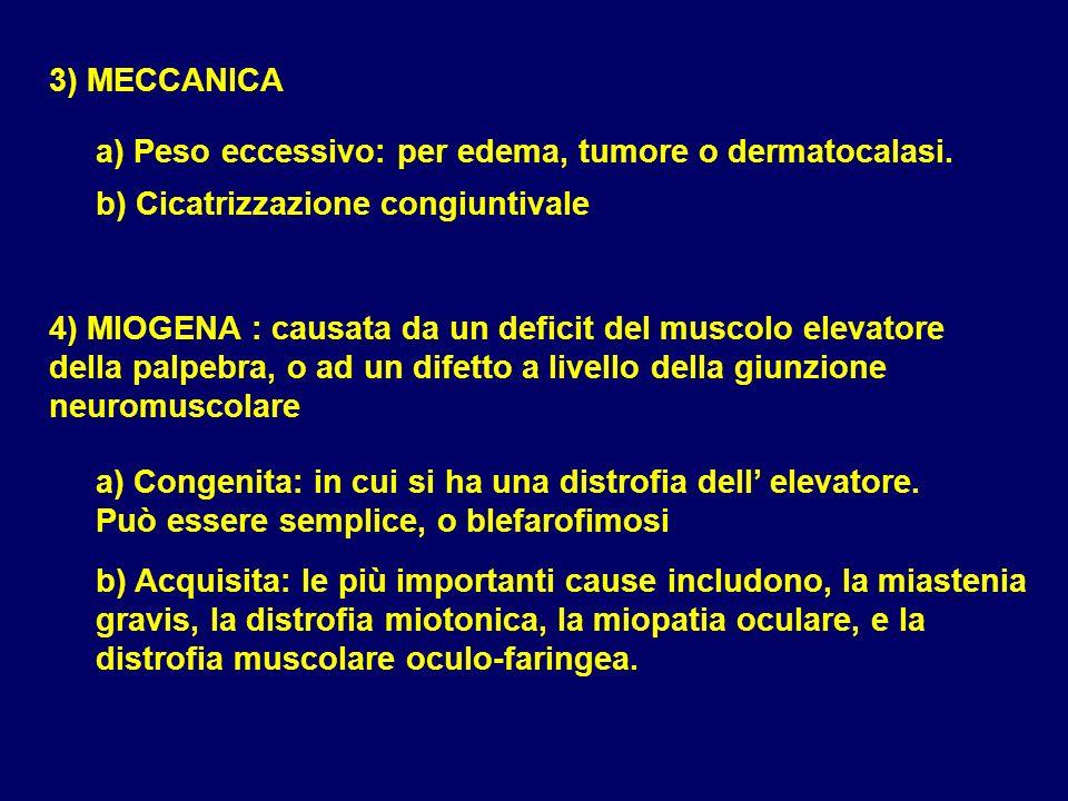 3) MECCANICA a) Peso eccessivo: per edema, tumore o dermatocalasi. b) Cicatrizzazione congiuntivale.