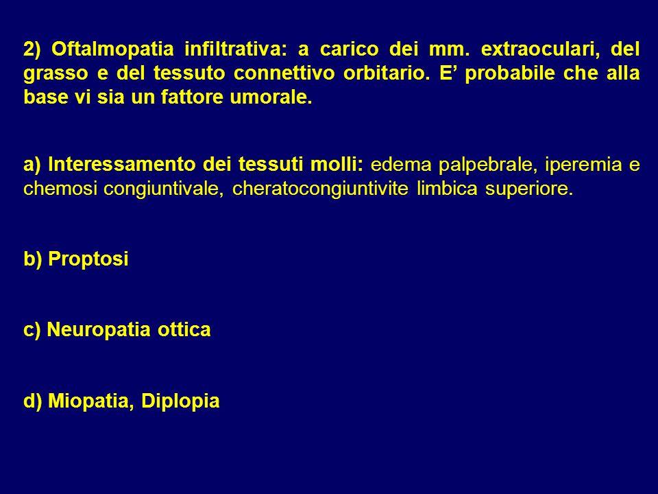 2) Oftalmopatia infiltrativa: a carico dei mm