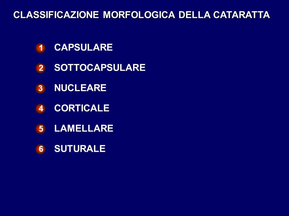 CLASSIFICAZIONE MORFOLOGICA DELLA CATARATTA