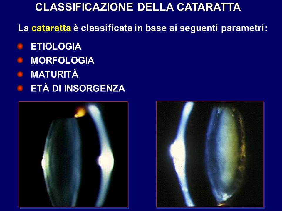 CLASSIFICAZIONE DELLA CATARATTA