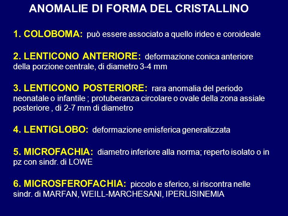 ANOMALIE DI FORMA DEL CRISTALLINO