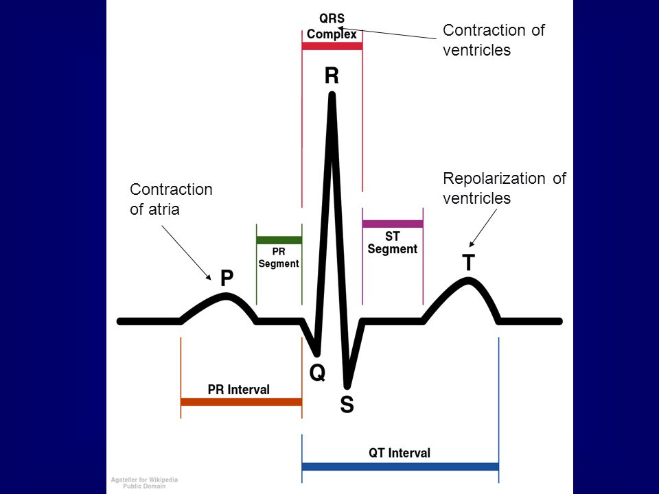 Contraction of ventricles