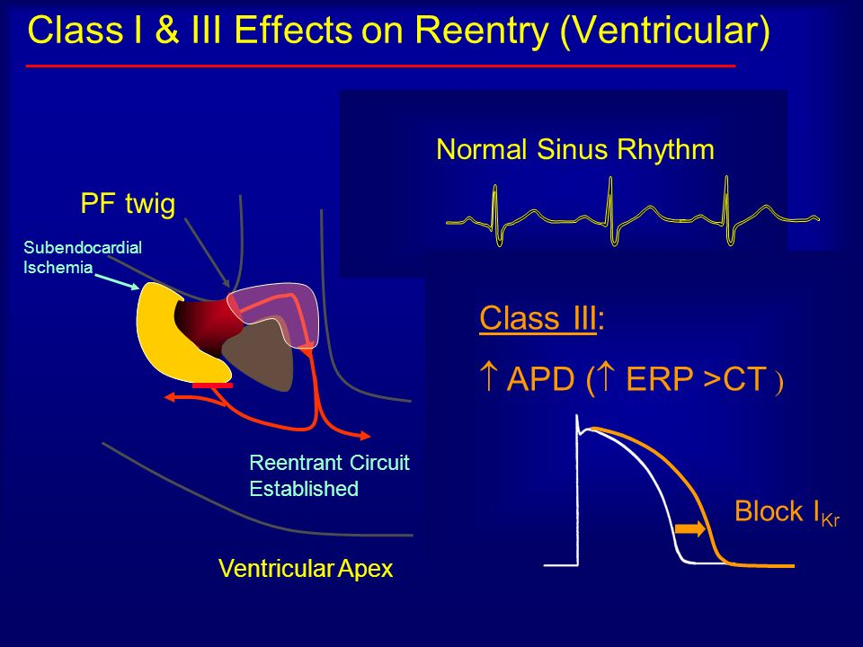 Class I & III Effects on Reentry (Ventricular)