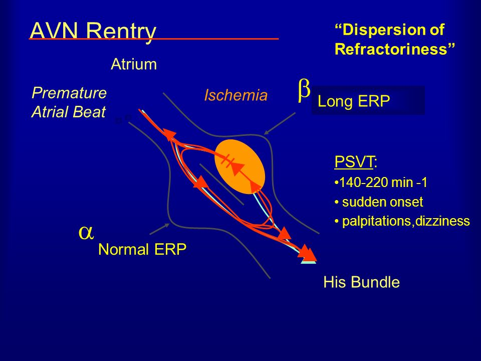   AVN Rentry Dispersion of Refractoriness Atrium