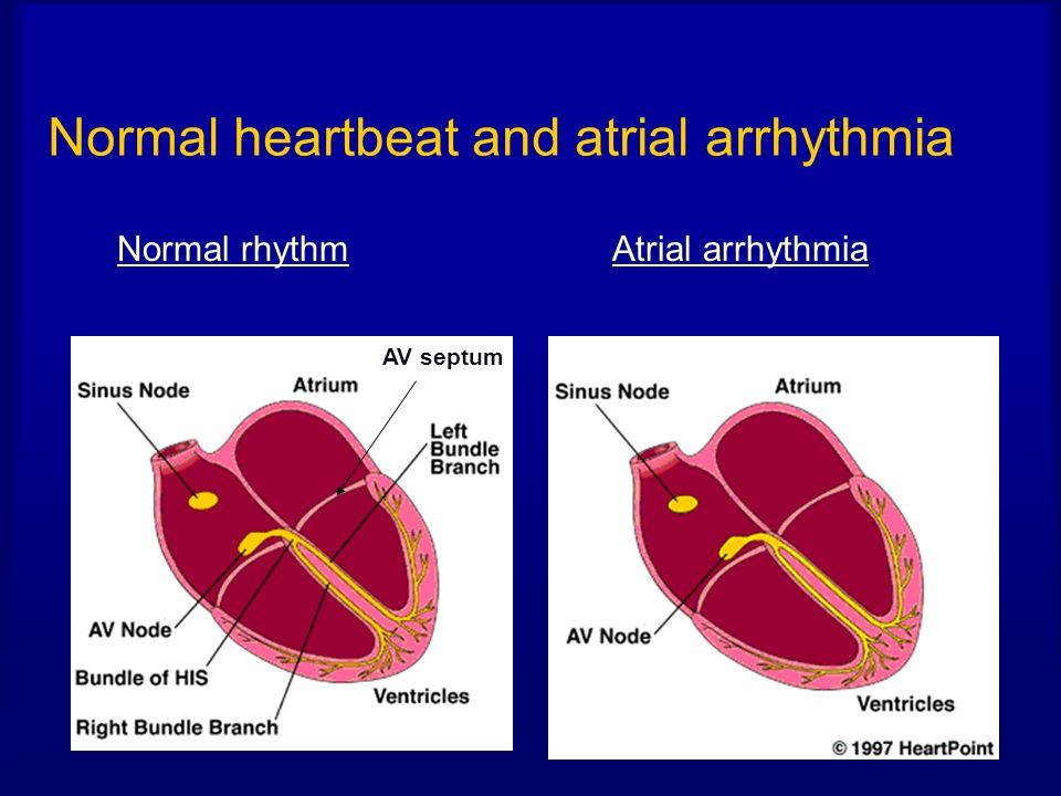 Normal heartbeat and atrial arrhythmia
