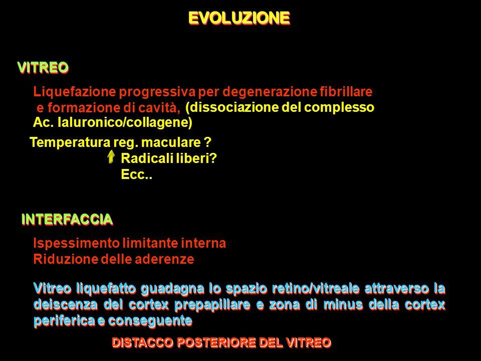 EVOLUZIONE VITREO. Liquefazione progressiva per degenerazione fibrillare. e formazione di cavità,