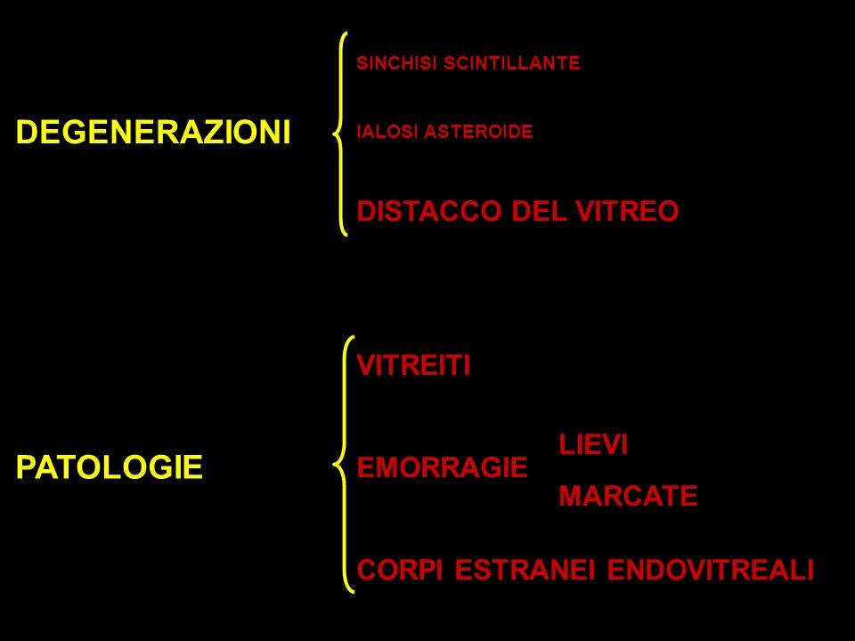DEGENERAZIONI PATOLOGIE DISTACCO DEL VITREO VITREITI EMORRAGIE