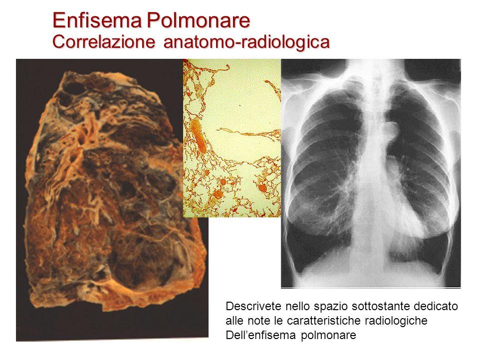 Enfisema Polmonare Correlazione anatomo-radiologica