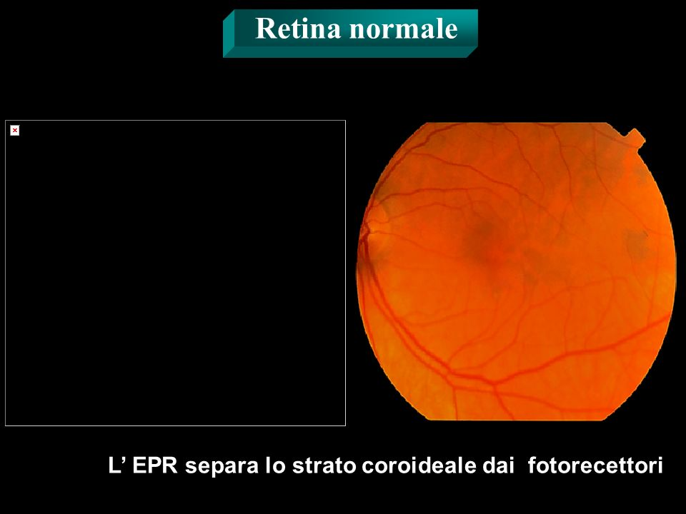 L' EPR separa lo strato coroideale dai fotorecettori