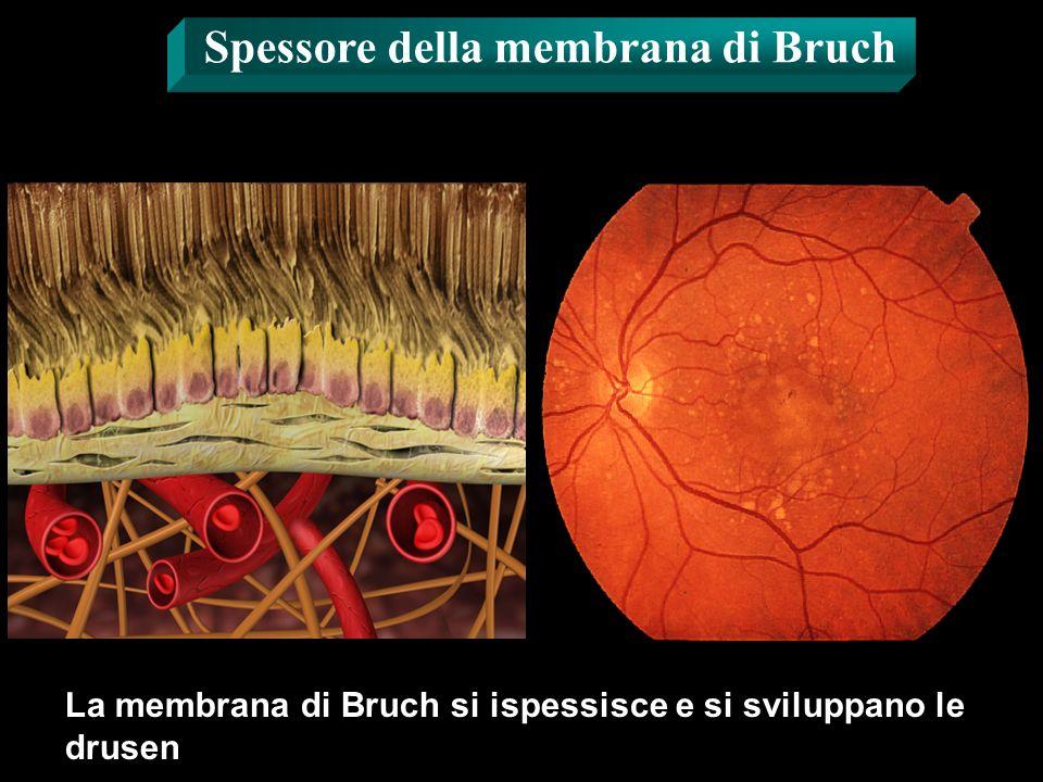 Spessore della membrana di Bruch