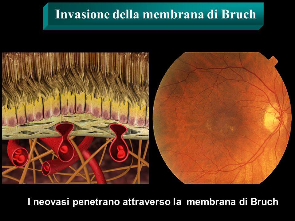 Invasione della membrana di Bruch