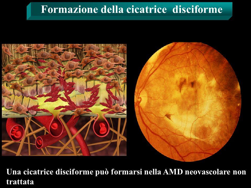 Formazione della cicatrice disciforme