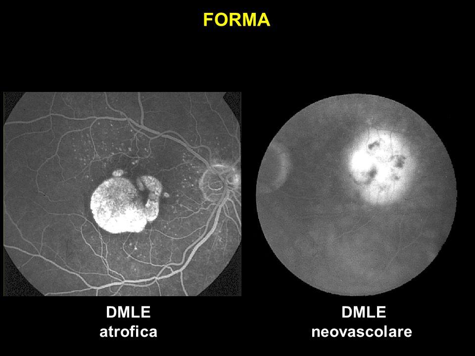 FORMA DMLE atrofica DMLE neovascolare