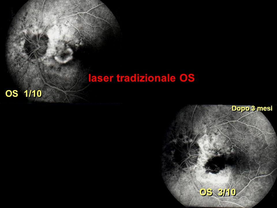 laser tradizionale OS OS 1/10 Dopo 3 mesi OS 3/10