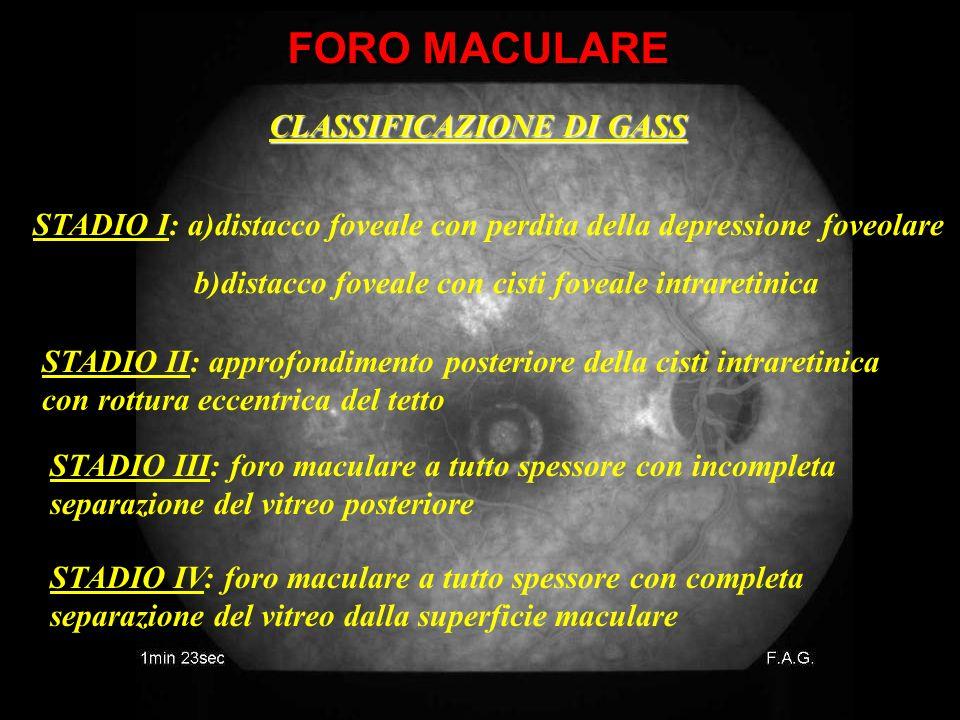 FORO MACULARE CLASSIFICAZIONE DI GASS