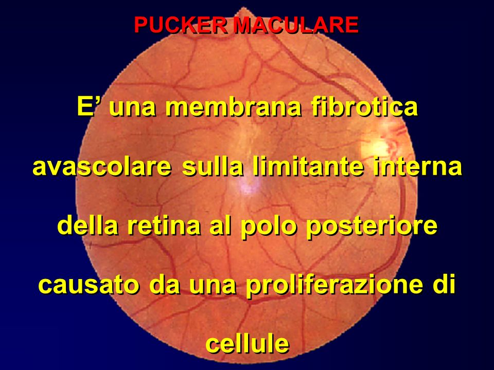 PUCKER MACULARE E' una membrana fibrotica avascolare sulla limitante interna della retina al polo posteriore causato da una proliferazione di cellule.