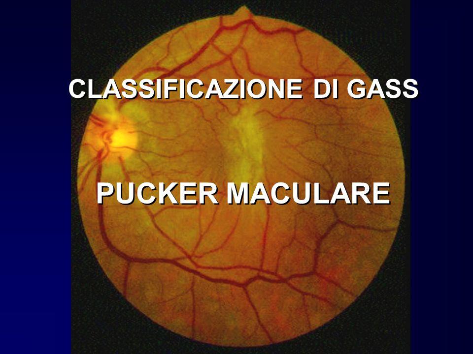 CLASSIFICAZIONE DI GASS