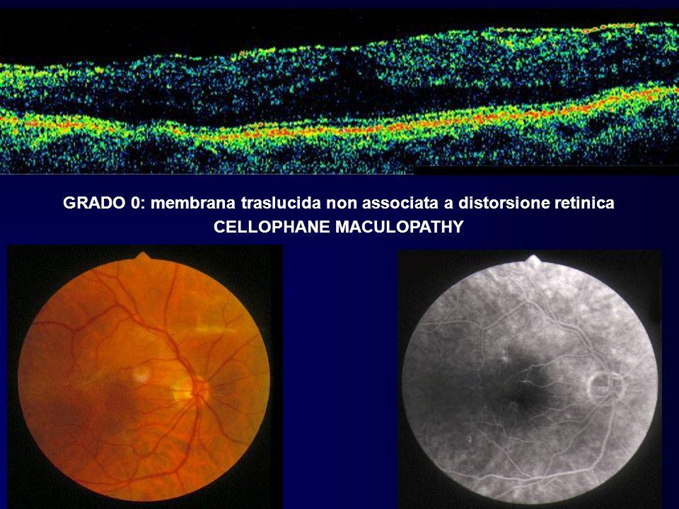 GRADO 0: membrana traslucida non associata a distorsione retinica CELLOPHANE MACULOPATHY