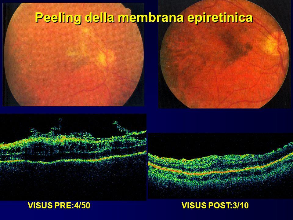 Peeling della membrana epiretinica