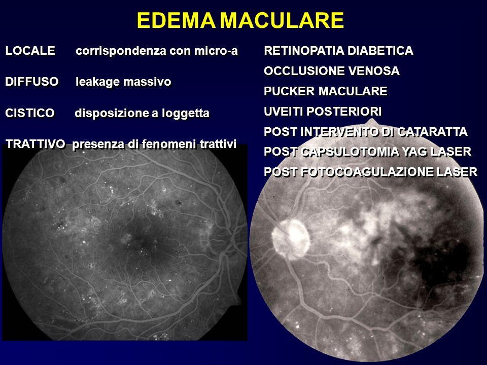 EDEMA MACULARE LOCALE corrispondenza con micro-a RETINOPATIA DIABETICA