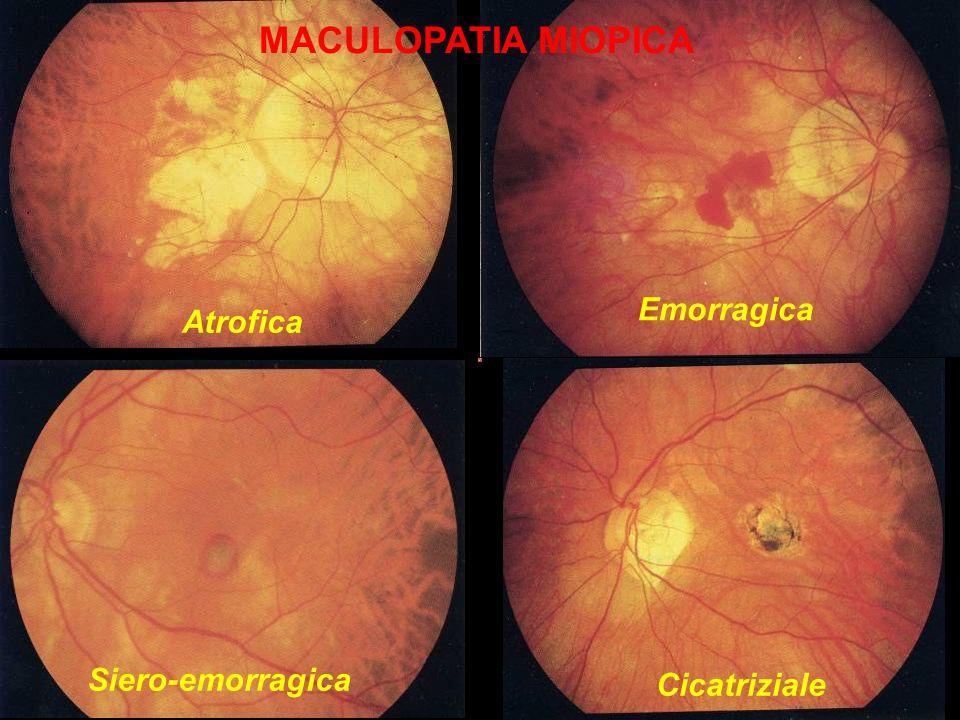 MACULOPATIA MIOPICA Emorragica Atrofica Siero-emorragica Cicatriziale