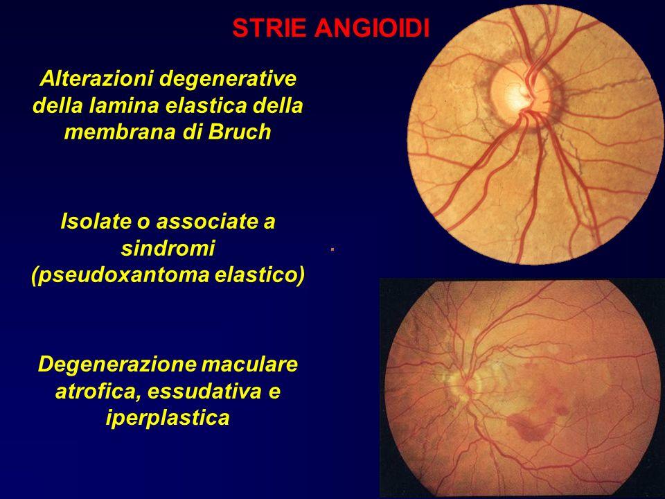 STRIE ANGIOIDI Alterazioni degenerative della lamina elastica della membrana di Bruch. Emorragica.