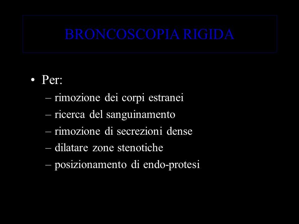 BRONCOSCOPIA RIGIDA Per: rimozione dei corpi estranei