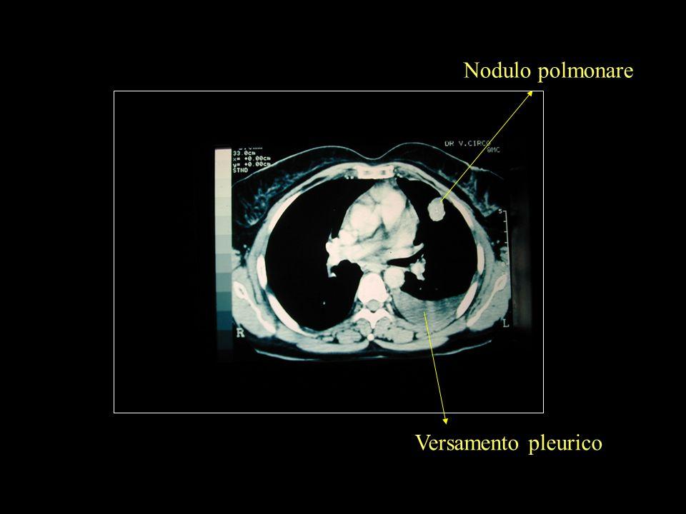 Nodulo polmonare Versamento pleurico