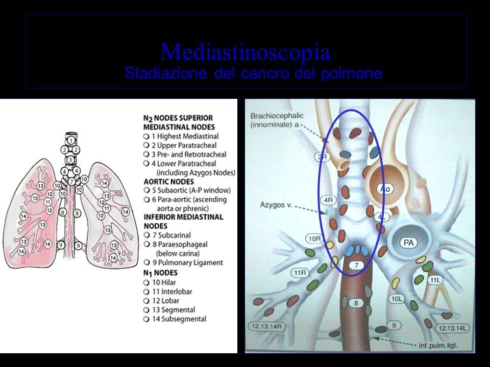 Stadiazione del cancro del polmone