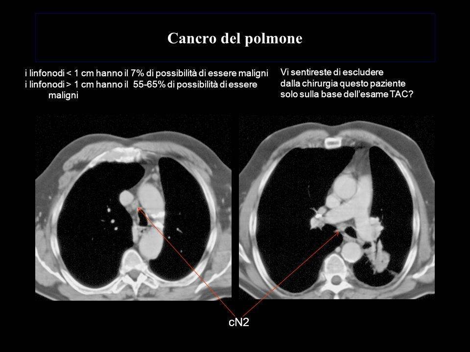 Cancro del polmone i linfonodi < 1 cm hanno il 7% di possibilità di essere maligni.