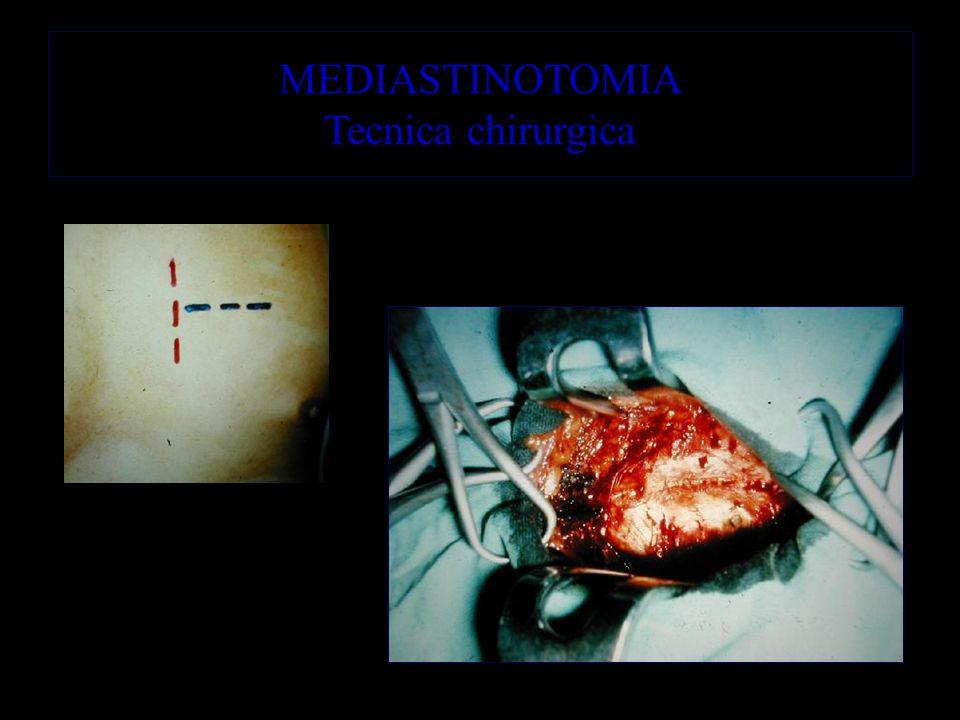 MEDIASTINOTOMIA Tecnica chirurgica