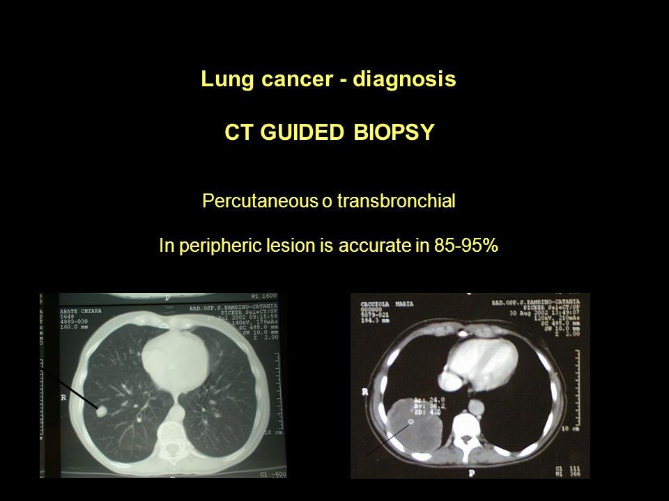 Lung cancer - diagnosis