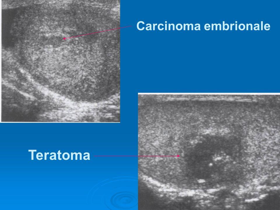 Carcinoma embrionale Teratoma