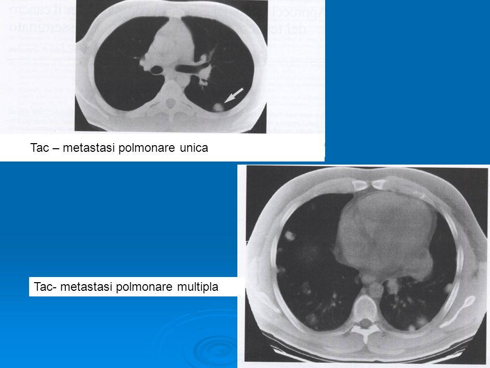 Tac – metastasi polmonare unica