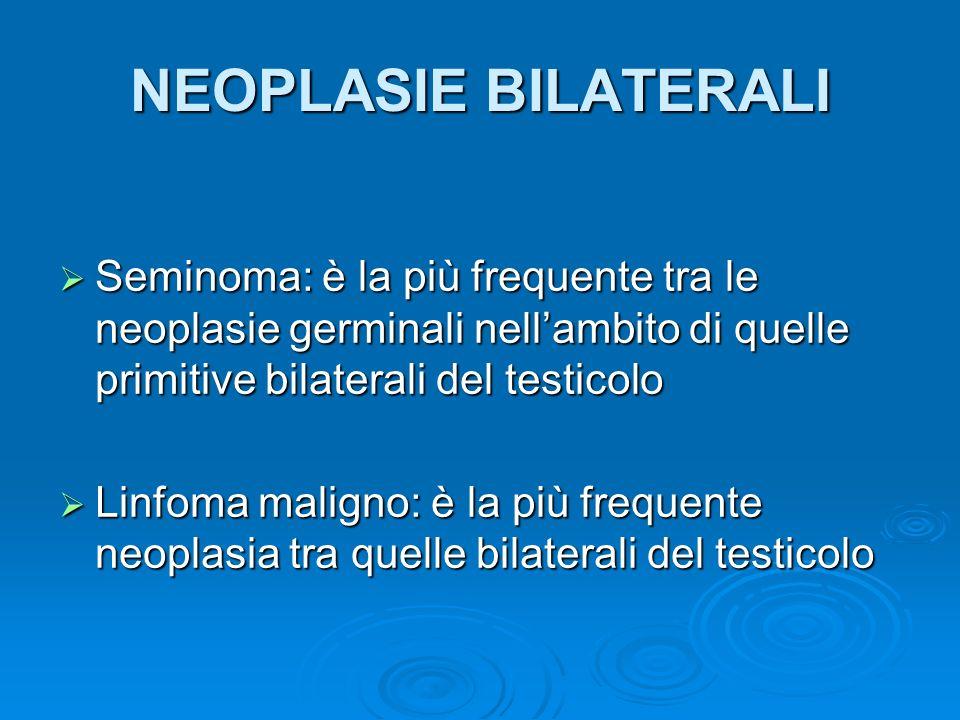 NEOPLASIE BILATERALI Seminoma: è la più frequente tra le neoplasie germinali nell'ambito di quelle primitive bilaterali del testicolo.