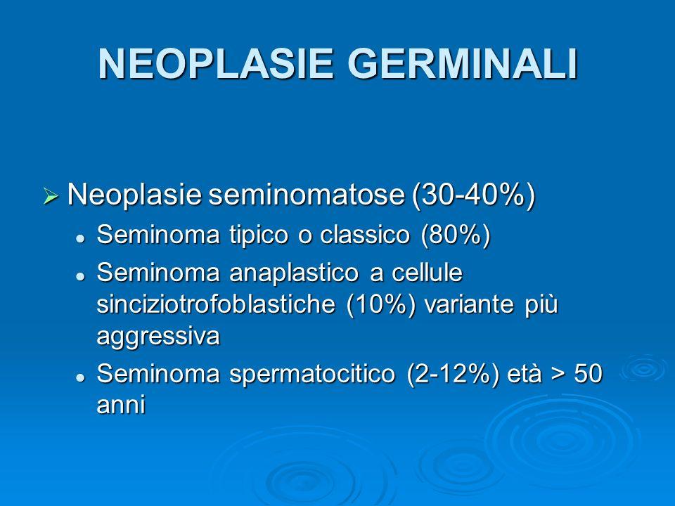NEOPLASIE GERMINALI Neoplasie seminomatose (30-40%)