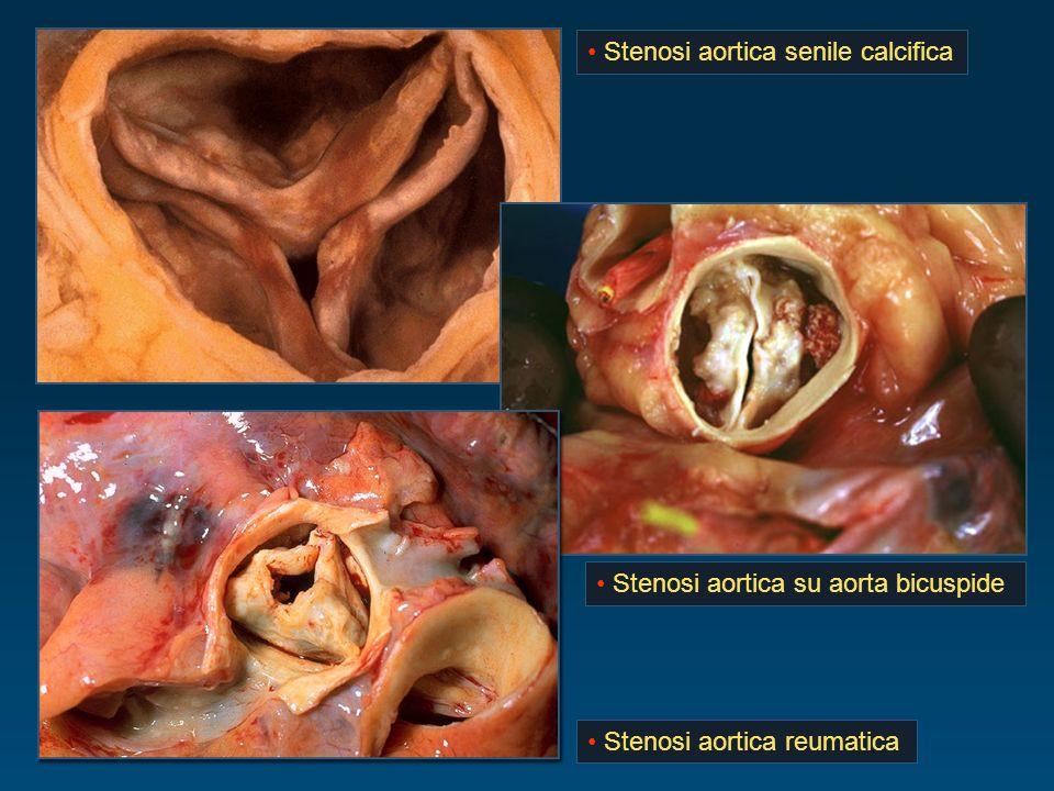 Stenosi aortica senile calcifica